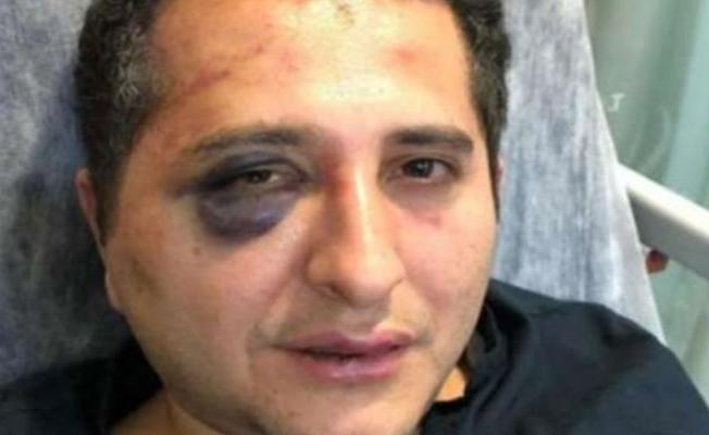 Cumhurbaşkanlığı korumaları tarafından darp edilen avukatın ev hapsi kaldırıldı