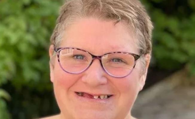 İngiltere'de diş hekimi randevularında yığılma: '11 dişimi kendi ellerimle çektim'